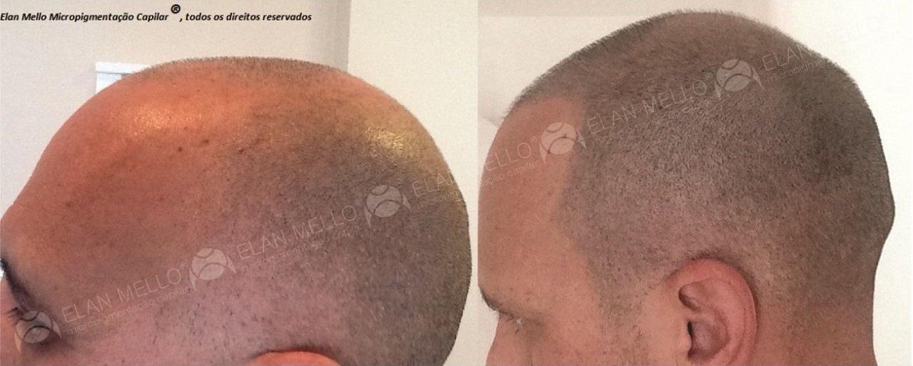 Micropigmentação Capilar em cabelo rapado em homem