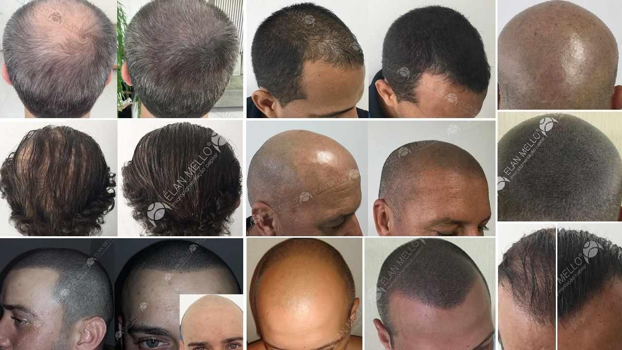 fotos de micropigmentação capilar cabelo grande grisalho raspado