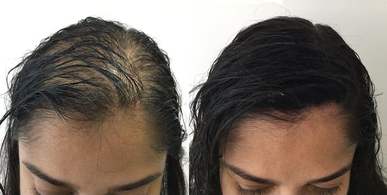 micropigmentação capilar em calvície de mulher