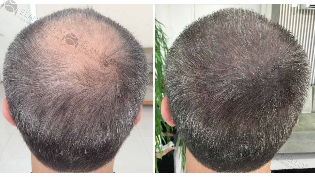 micropigmentação capilar em homem de cabelo grisalho na coroa de transplante