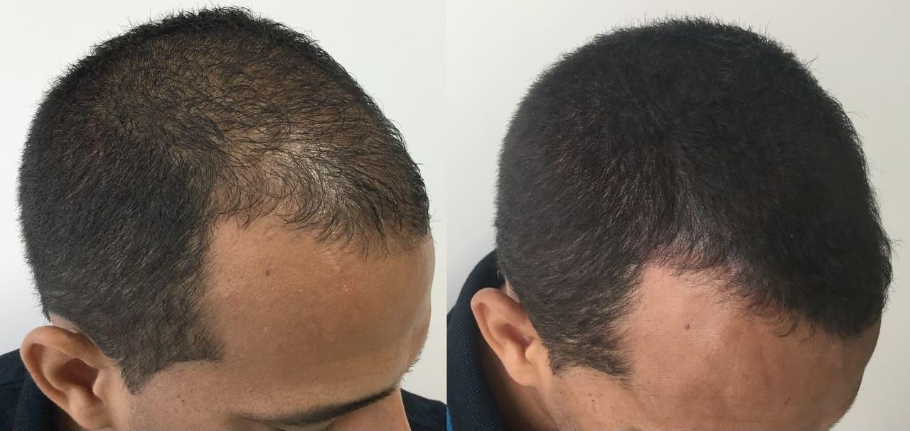 micropigmentação capilar em homem com calvície e pouca densidade de cabelos