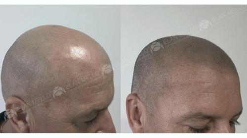 micropigmentacao-capilar-cabelo-rapado-portugal-(1) (1)