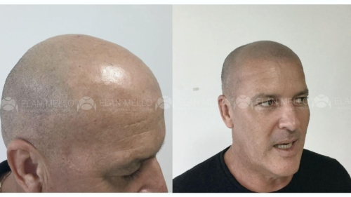 micropigmentacao-capilar-cabelo-rapado-portugal-(2) (1) (1)