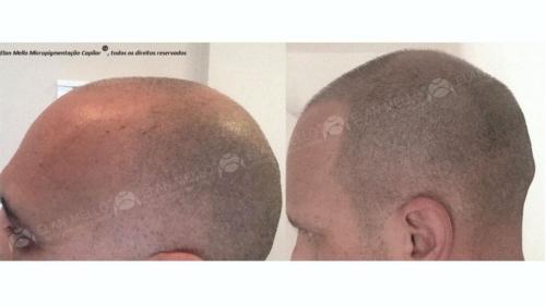 micropigmentacao-capilar-cabelo-rapado-portugal-(4) (1)