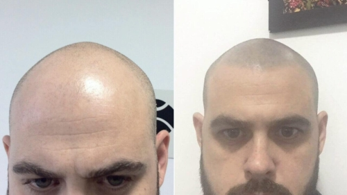 micropigmentacao-capilar-cabelo-rapado-portugal (1)