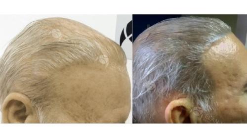 micropigmentacao-capilar-fundo-cabelo-branco-portugal (1)