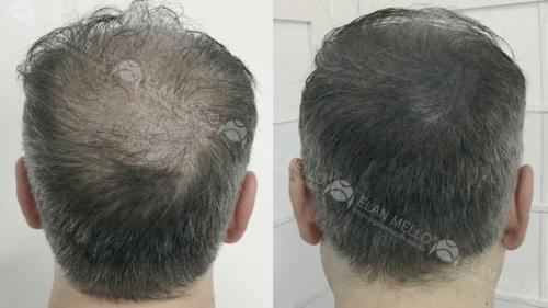 micropigmentacao-capilar-fundo-cabelo-grisalho-portugal-(1)