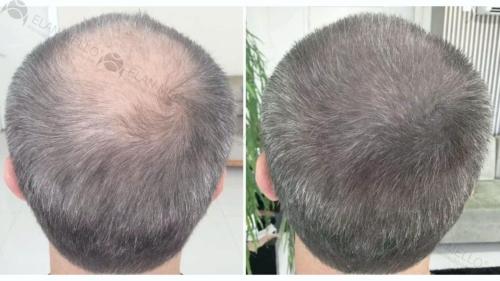 micropigmentacao-capilar-fundo-cabelo-grisalho-portugal