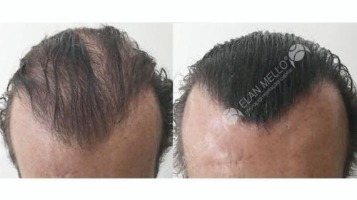 micropigmentacao-capilar-fundo-transplante-portugal-(12)