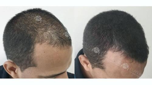 micropigmentacao-capilar-fundo-transplante-portugal-(14)