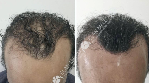 micropigmentacao-capilar-fundo-transplante-portugal-(3)