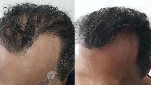 micropigmentacao-capilar-fundo-transplante-portugal-(6)