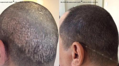 micropigmentacao-capilar-portugal-cicatriz-transplante-(1)
