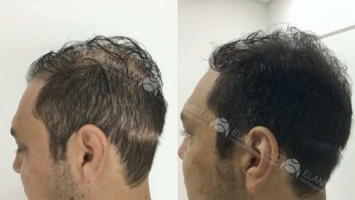 micropigmentacao-capilar-portugal-cicatriz-transplante-(5)