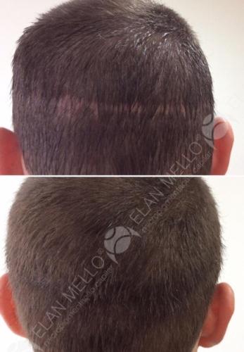 micropigmentacao-capilar-portugal-cicatriz-transplante
