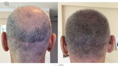 micropigmentacao-capilar-portugal-fundo-cabelo-grisalho-(2)