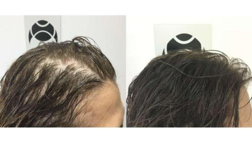 micropigmentacao-capilar-portugal-fundo-calvicie-feminina-(11)