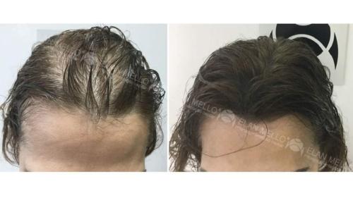 micropigmentacao-capilar-portugal-fundo-calvicie-feminina-(12)