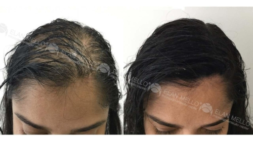 micropigmentacao-capilar-portugal-fundo-calvicie-feminina-(4)