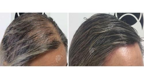 micropigmentacao-capilar-portugal-fundo-calvicie-feminina-(5)