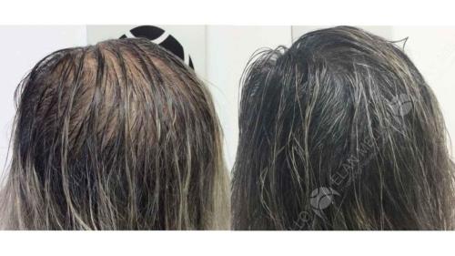 micropigmentacao-capilar-portugal-fundo-calvicie-feminina-(6)