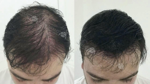 micropigmentacao-capilar-portugal-fundo-transplante-(2)