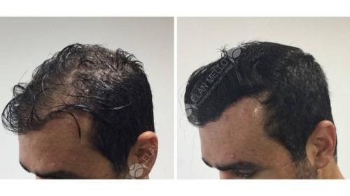 micropigmentacao-capilar-portugal-fundo-transplante-(9)