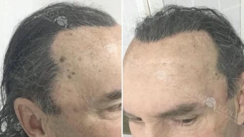 micropigmentacao-capilar-portugal-fundo-transplante
